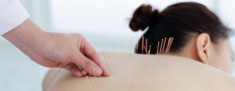 acupuntura-para-ansiedade-e-depressao-clinica-salute-care-blog.jpg